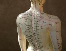 Indianapolis Acupuncture